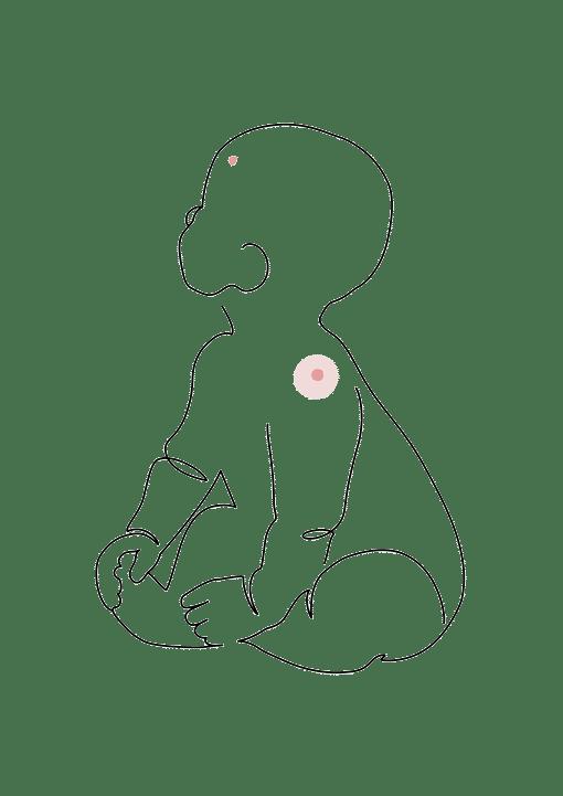 chirurgie des anomalies vasculaires - chirurgie plastique de l'enfant dr la marca clinique du Val d'Ouest ecully, clinique du renaison roanne