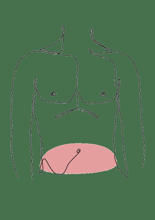 abdominoplastie de l'homme chirurgie esthetique plastique reconstructrice Dr La Marca ecully roanne