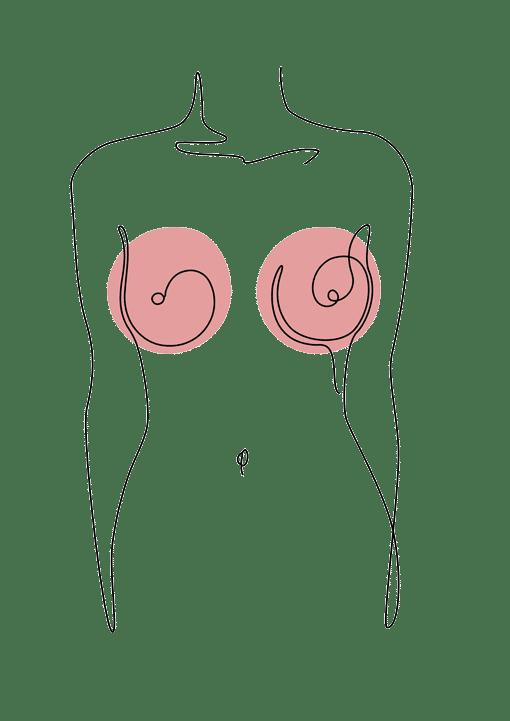 reduction mammaire - chirurgie esthétique Dr La Marca Ecully Roanne