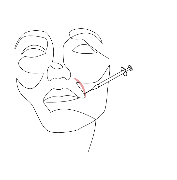 acide hyalurnique medecine esthétique comblement des rides medecine esthetique dr la marca ecully roanne