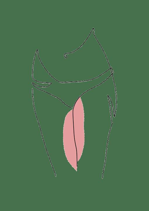 cruroplastie ou lifting des cuisse chirurgie esthetique dr la marca ecully roanne