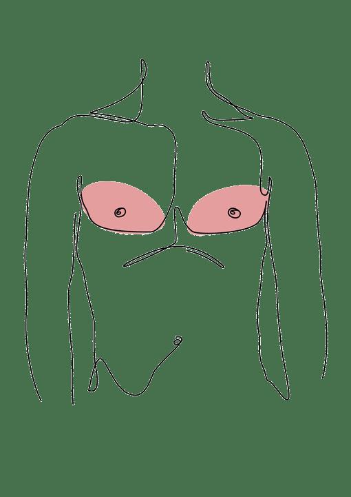 gynecomastie ablation des seins chez l'homme chirurgie esthetique Dr La Marca ecully roanne