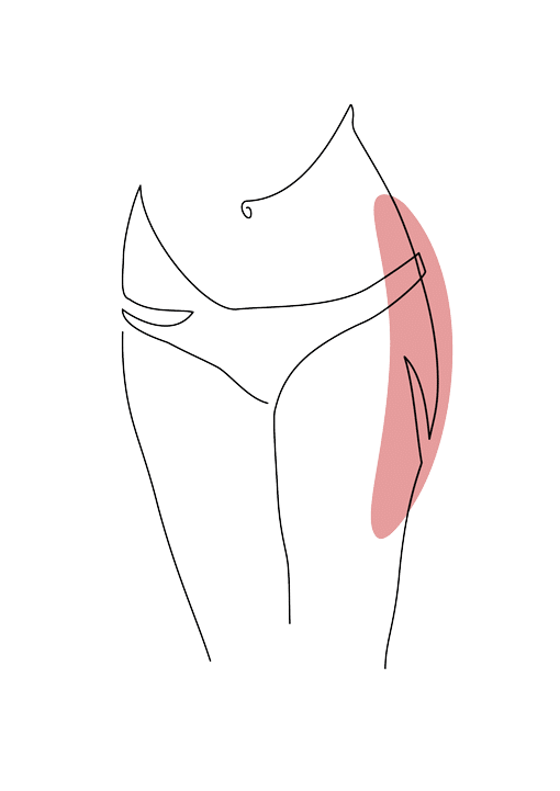 liposuccion des hanches chirurgie esthetique plastique reconstructrice Dr La Marca ecully roanne