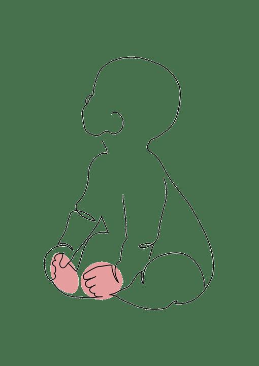malformation des mains et des pieds chez le nouveau ne et l'enfant chirurgie plastique Dr la marca ecully roanne