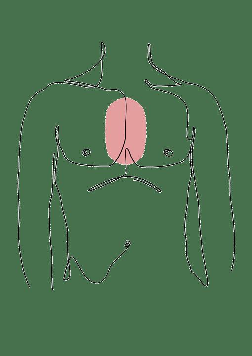 malformation thoracique chirurgie esthétique plastique reconstructrice Dr La Marca Ecully Roanne
