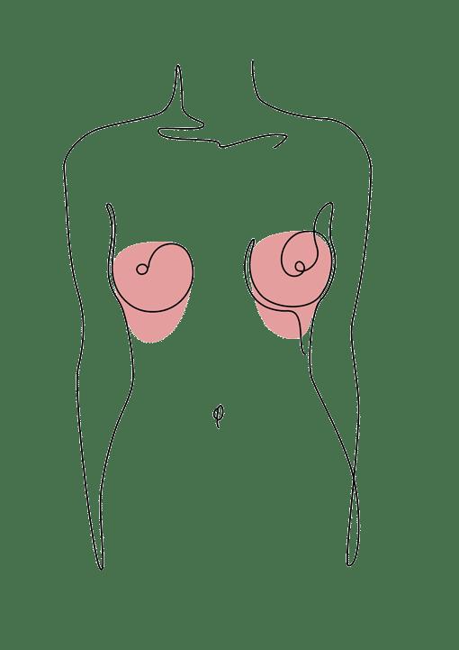 ptose mammaire - chirurgie esthétique plastique reconstructrice Dr La Marca Ecully Roanne
