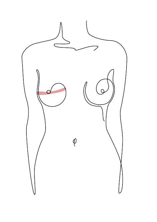 reconstruction mammaire - chirurgie plastique Dr La Marca Ecully Roanne
