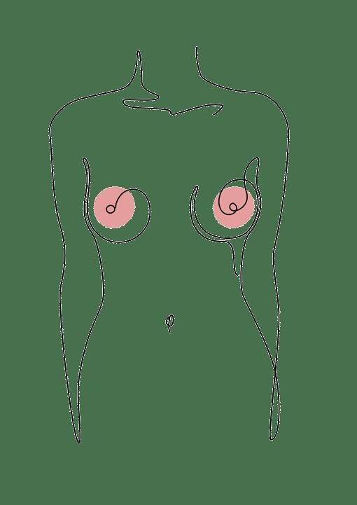 augmentation mammaire chirurgie plastique Dr La Marca Ecully Roanne
