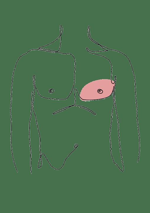 syndrome de poland chirurgie esthétique plastique reconstructrice Dr La Marca Ecully Roanne
