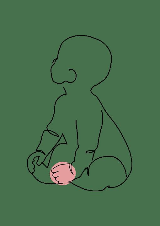 malformation des mains chez le nourrisson et l'enfant - Dr La Marca - Chirurgie plastique de l'enfant - clinique du Val d'ouest à Ecully et clinique du renaison à Roanne