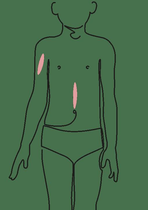 CHIRURGIE DE L'ENFANT Séquelles de cicatrices - dr La Marca chirurgien plasticien clinique du Val d'Ouest Ecully et clinique du Renaison à Roanne
