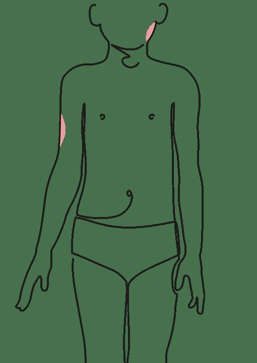 lipomodelage sous cutanée chez l'enfant - Dr La Marca chirurgien plasticien clinique du val d'Ouest à Ecully et clinique du Renaison à Roanne