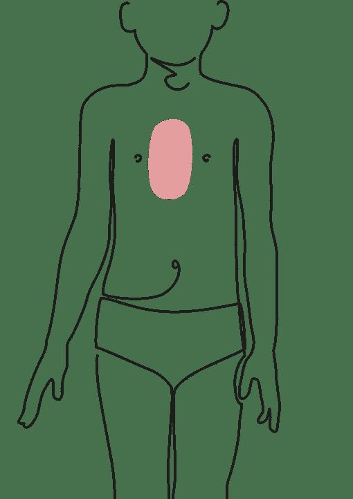 chirurgie thoracique de l'enfant chirurgie plastique dr la marca ecully roanne